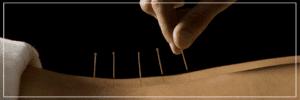 Bækkensmerter - Bækkenløsning - Akupunktur