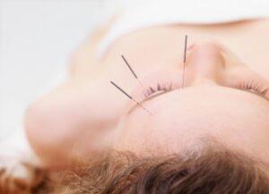 Hovedpine - Migræne - gode råd - holistisk tilgang til kroppen - Isis klinikken